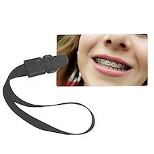 Dental braces Luggage Tag