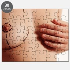 Cosmetic surgery markings Puzzle