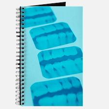 Dental X-rays Journal