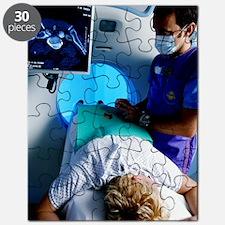 CT scanning Puzzle