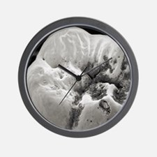 Decay on molar tooth, SEM Wall Clock