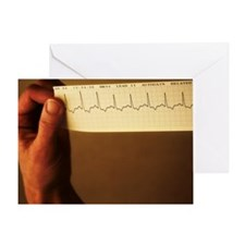 ECG of a normal heart rate Greeting Card