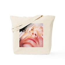 Eye surgery Tote Bag