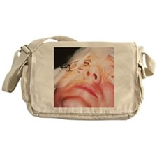 Eye surgery Messenger Bag