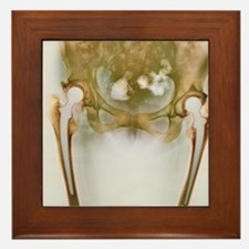 Double hip replacement, X-ray Framed Tile