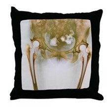 Double hip replacement, X-ray Throw Pillow