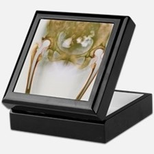 Double hip replacement, X-ray Keepsake Box