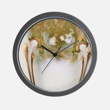 Double hip replacement, X-ray Wall Clock