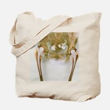 Double hip replacement, X-ray Tote Bag