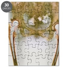 Double hip replacement, X-ray Puzzle