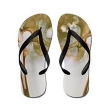 Double hip replacement, X-ray Flip Flops
