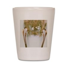 Double hip replacement, X-ray Shot Glass