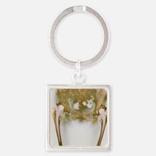 Double hip replacement, X-ray Square Keychain