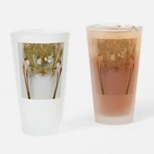 Double hip replacement, X-ray Drinking Glass