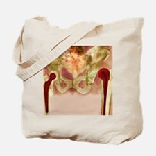 Failed hip joint replacement, X-ray Tote Bag