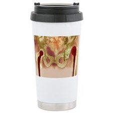 Failed hip joint replacement, X Travel Mug