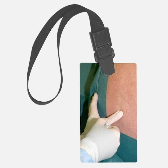 Epidural anaesthetic Luggage Tag
