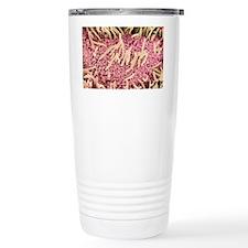 Underside of a slug, SEM Travel Mug