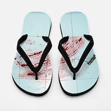 Fear of surgery Flip Flops