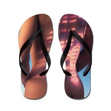 Genetic factors in disease Flip Flops