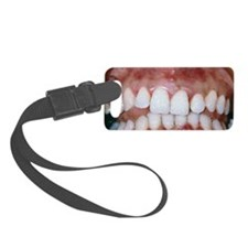 Gingivitis Luggage Tag