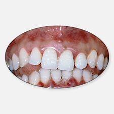 Gingivitis Decal