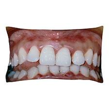 Gingivitis Pillow Case