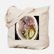Glioma brain cancer growth, CT scan Tote Bag