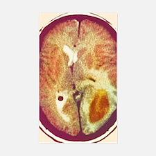 Glioma brain cancer, CT scan Decal
