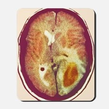 Glioma brain cancer, CT scan Mousepad