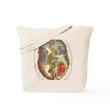 Glioma brain cancer growth, CT scan Tote Bag