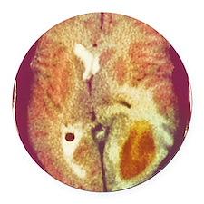 Glioma brain cancer, CT scan Round Car Magnet