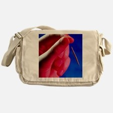 Hand holds a GyneFIX intrauterine co Messenger Bag