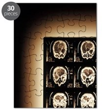 Radiograph of Brain Puzzle