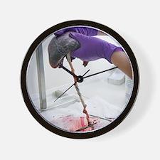 Harvesting umbilical cord stem cells Wall Clock