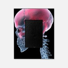 Headache, X-ray artwork Picture Frame