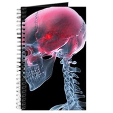 Headache, X-ray artwork Journal