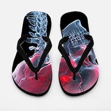 Headache, X-ray artwork Flip Flops