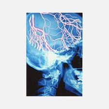 Headache Rectangle Magnet
