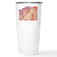 Healing skin ulcer, light micro Travel Mug
