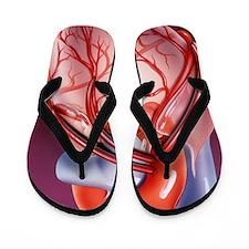 Heart bypass grafts Flip Flops
