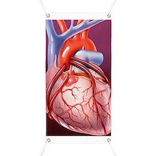 Heart bypass grafts Banner