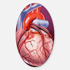 Heart bypass grafts Decal