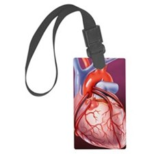 Heart bypass grafts Luggage Tag