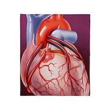 Heart bypass grafts Throw Blanket