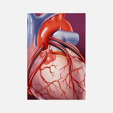 Heart bypass grafts Rectangle Magnet