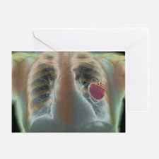 Heart pacemaker, X-ray Greeting Card