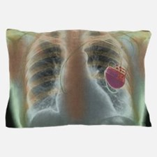 Heart pacemaker, X-ray Pillow Case