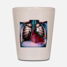 Heart pacemaker, X-ray Shot Glass