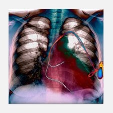 Heart pacemaker, X-ray Tile Coaster